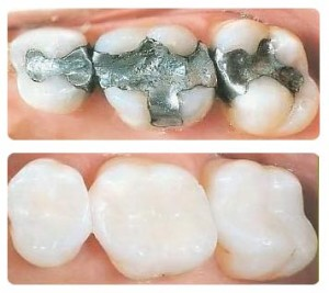 dental-fillingsd